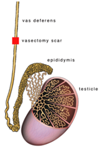 vasovasostomy-1