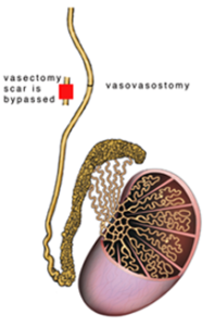 vasovasostomy-2