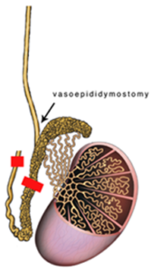vasoepididymostomy